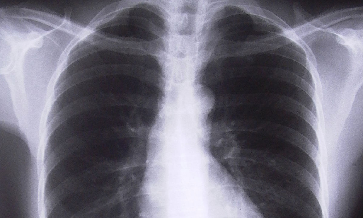 Xray of lungs. Photo credit: Adam Ciesielski on FreeImages.